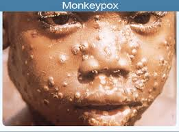 Causes of Monkey pox virus and Treatment as Two cases reported in Lagos