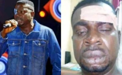 Baba Fryo Battered & Assaulted By 'Unknown' Soldiers In Lagos