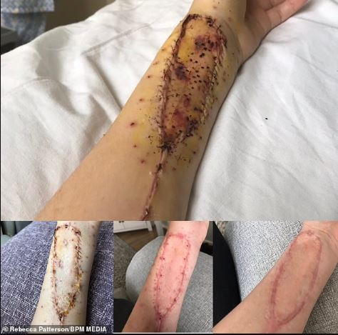 Cancer patient, Rebecca Patterson has tongue replaced with arm skin after she was diagnosed with cancer